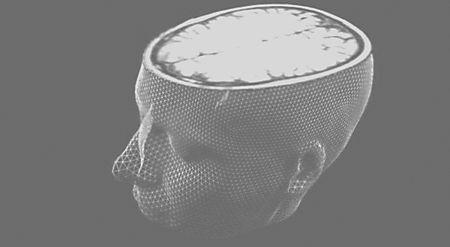 Brainscan~s600x600